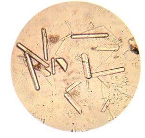 фосфаты в моче под микроскопом