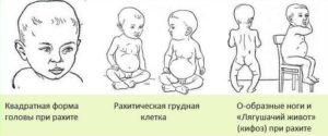 рисунок рахита у ребенка