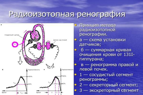 Радиоизотопное исследование почек  о чем говорит и как проводится