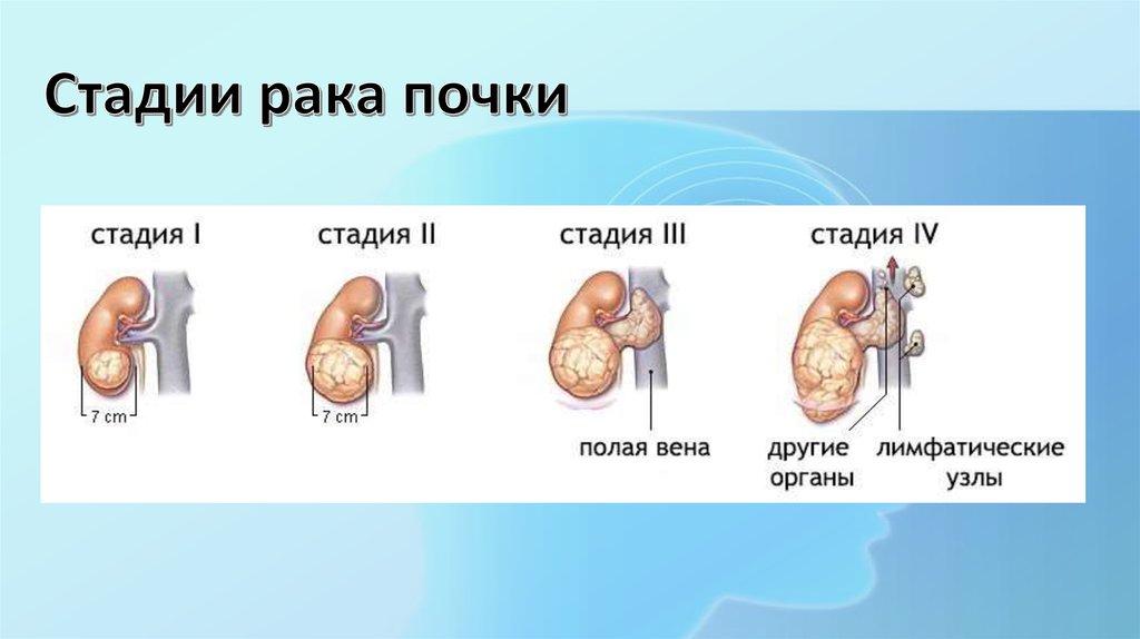 рак почки стадии