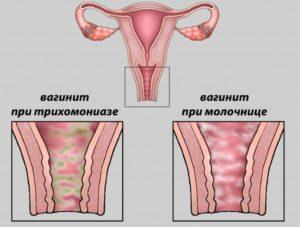 рисунок схема вагинита