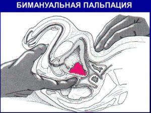 бимануальная пальпация