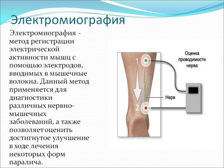 электромиография