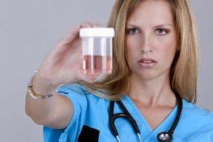 контейнер с мочой в руках доктора