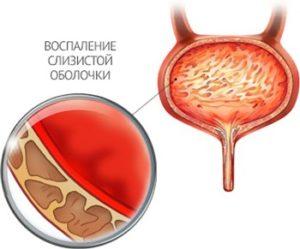 Боль при мочеиспускании у ребенка, болезненное мочевыделение у девочки
