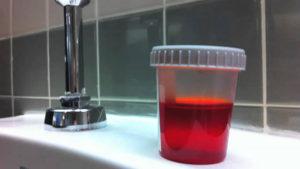 баночка с анализом кровавой мочи