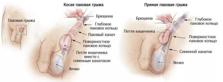 рисунок паховой грыжи