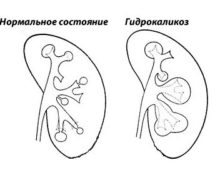гидрокаликоз