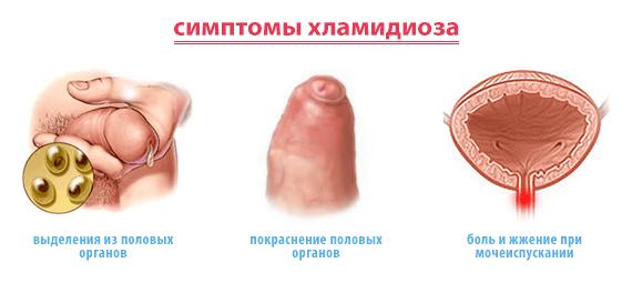 рисунок симптомов хламидиоза