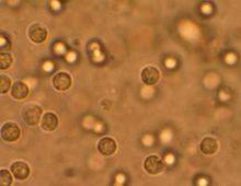 лейкоциты в моче под микроскопом