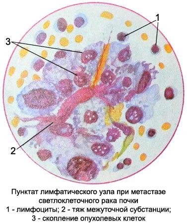 светлоклеточный рак