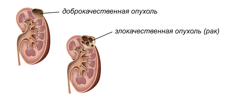 виды опухолей в почке