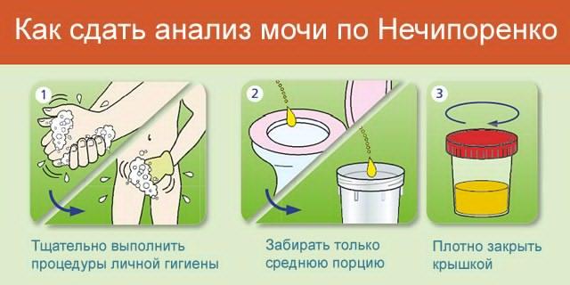 анализ урины по Нечипоренко