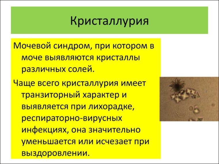 кристаллурия