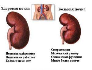 сравнение здоровой и больной почек