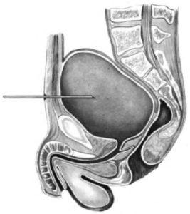 биопсия мочевого