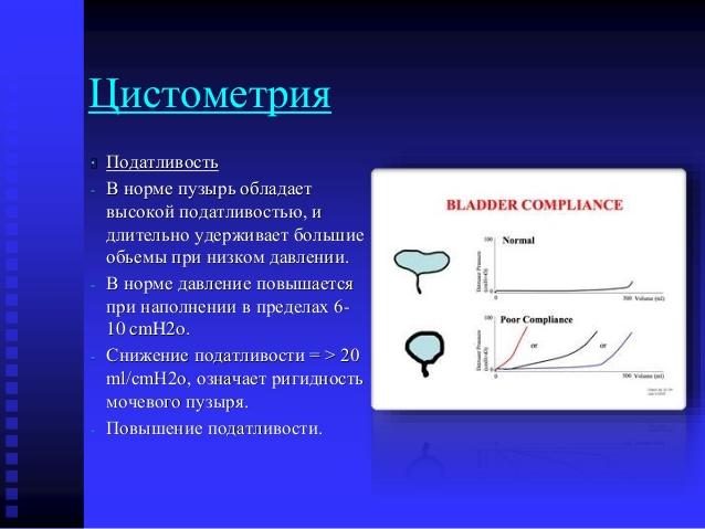 цистометрия
