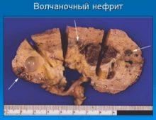 люпус нефрит