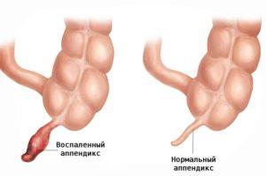 рисунок воспаления аппендицита