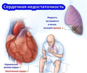 сердечная неостаточность