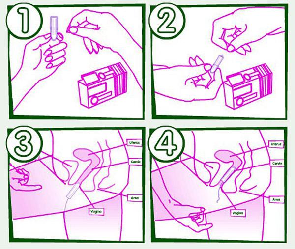 Метронидазол свечи как вводить